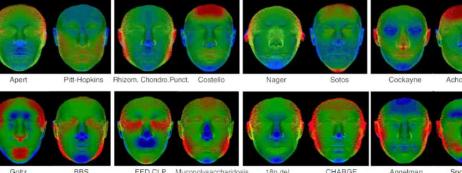 3D面部扫描可加快诊断罕见遗传病儿童的速度